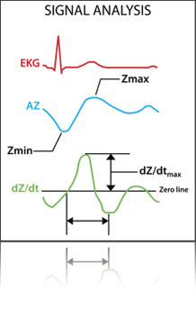 signal_analysis_diag